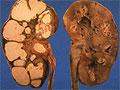 Туберкулез почек у детей и подросков