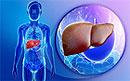 Осложнения вирусного воспаления печени типа С