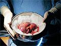 Американские медики считают возможной повторную трансплантацию почек