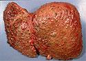 Печень восстановится после цирроза