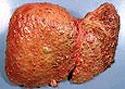 Цирроз печени — дифференциальная диагностика