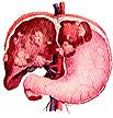 Признаки и симптомы рака печени