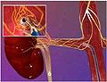 «Разрушение» почечных нервов ведёт к лечению гипертонии