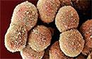 Клетки печени могут поедать иммунные клетки