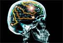 Американские ученые обнаружили, что заболевания почек приводят к снижению когнитивной функции